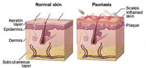 psoriasis fingers treatment