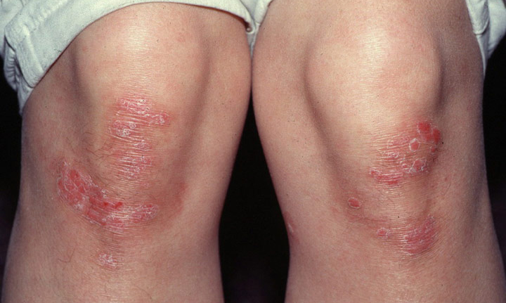 How To Get Get Rid Of Psoriasis Scars 1